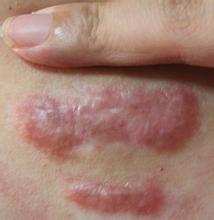 你知道怎么治疗平时烫伤的疤痕吗?