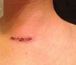 手术疤痕修复需要注意什么