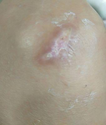 疤痕疙瘩都有哪些特点