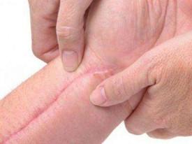 生活中有哪些常见的疤痕?