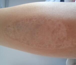烫伤疤痕的危害有哪些?